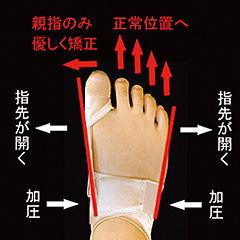 外反母趾矯正の仕組み