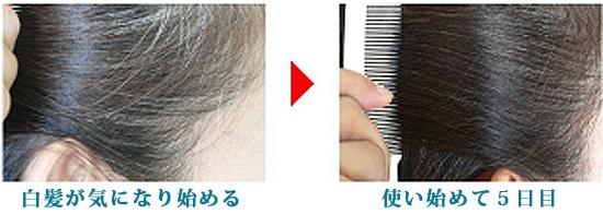 ソメールグローは使い始めてから5日で効果が現れます。